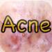 Acne Eraser